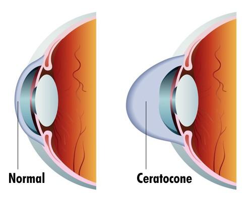 Ceratocone causa deformação no formato da córnea.