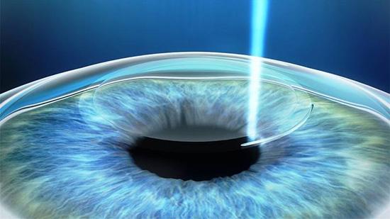 945c691f5 Cirurgia refrativa a laser permite maior segurança na correção de miopia