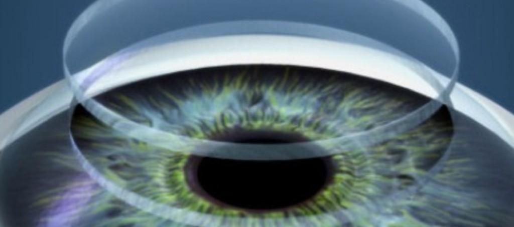 transplate-de-cornea-mx47inrmq69zkkou7amer1d1qt5j9hcqek27ry2nm0