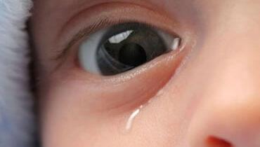 cirurgia das vias lacrimais