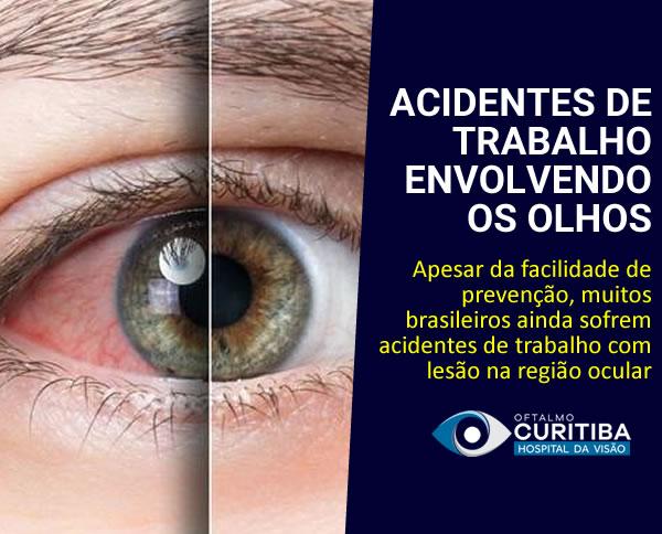 acidente de trabalho envolvendo os olhos