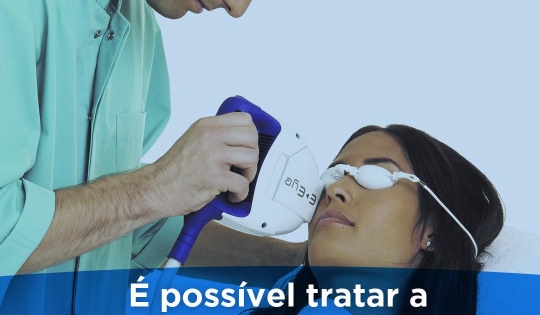 é possível tratar a síndrome do olho seco