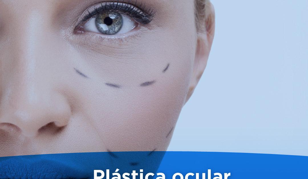 plastica ocular