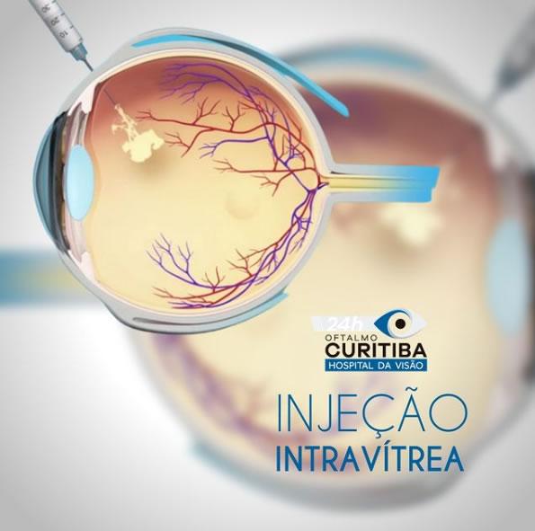 injeção intravitrea em curitiba