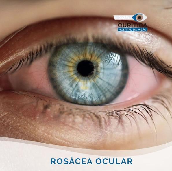 tratamento da rosácea ocular em curitiba