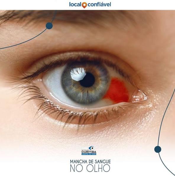 mancha de sangue no olho tratamento curitiba